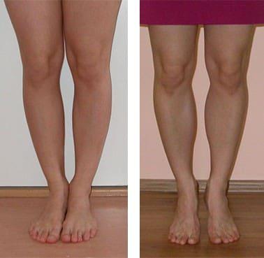 Как сделать ноги ниже колен