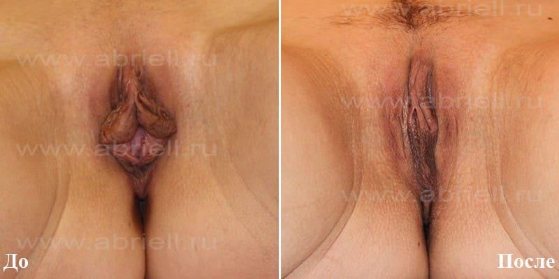 Клиновидная пластика губ фото