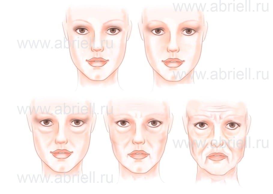 Схема старения лица