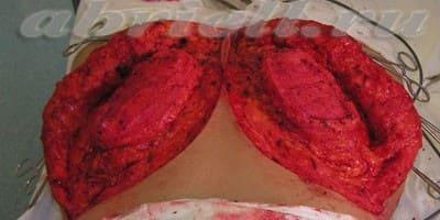 Коррекция формы ягодиц