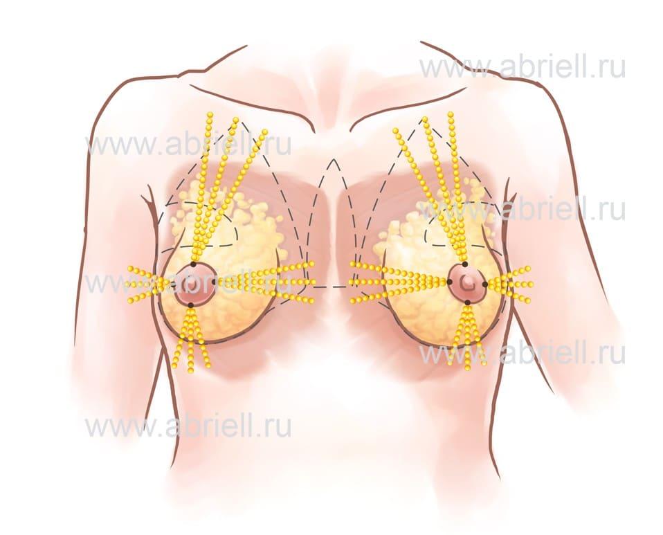 Тубулярная молочная железа