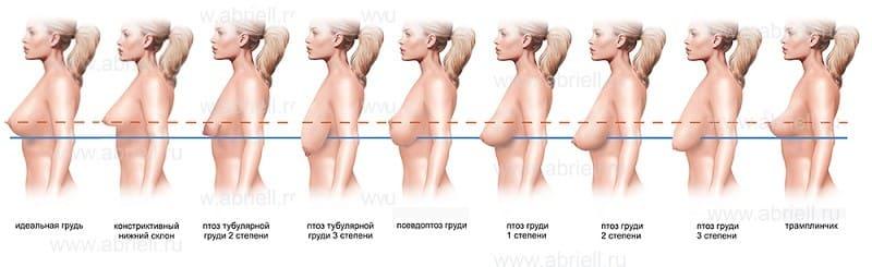 Имплант грудной железы