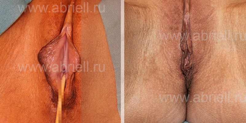 Сшивание половых губ медики видео — img 9