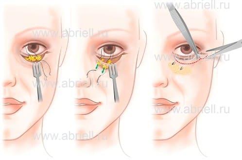 С широко открытыми глазами: звезды после блефаропластики