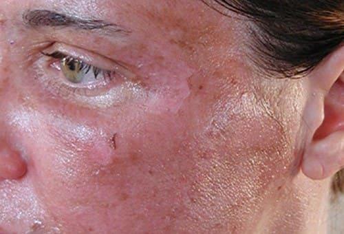 Химический ожог кожи вокруг глаз 179