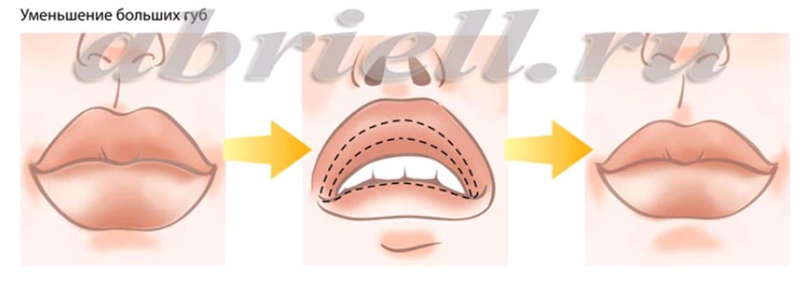 Уменьшение объема губ