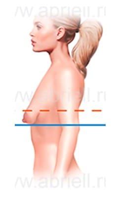 Фото: Тубулярная грудь