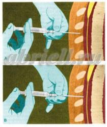 Продвижение иглы в эпидуральное пространство в объёмном изображении.
